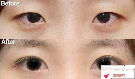 做完激光双眼皮后可以随意服用止痛药吗?