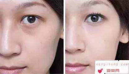 做完去眼袋手术后出现下眼脸凹陷的情况需不需要进行修复