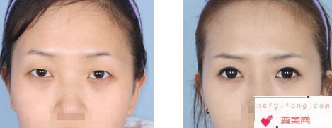 刚做完双眼皮手术4天可以吃带有色素食物吗