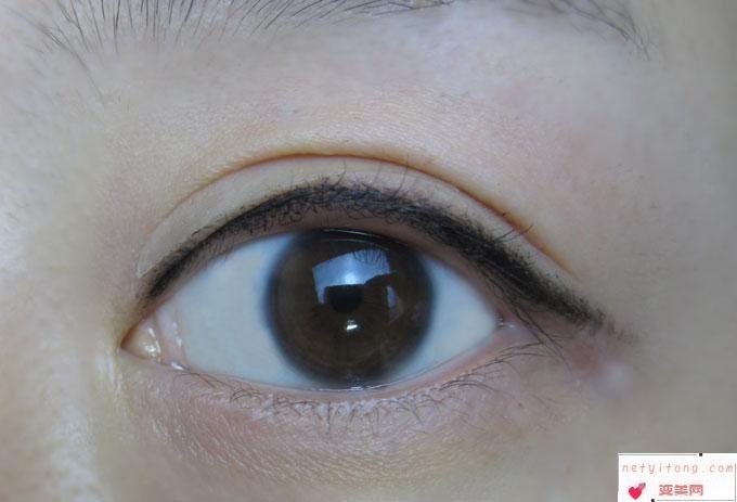 进行双眼皮手术采用埋线法会有不良反应吗