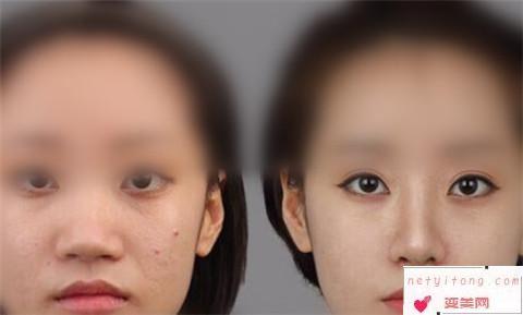 鼻翼缩小手术之后为什么眼部会出现肿胀和青紫