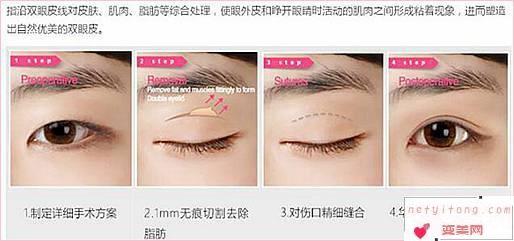 4大眼睫毛种植手术美容整形的特征是什么