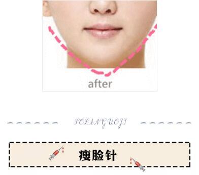偷懒又有效的瘦脸方法,3天让脸小一圈